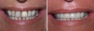 Циркониевые коронки до и после