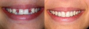 Одноэтапная имплантация до и после