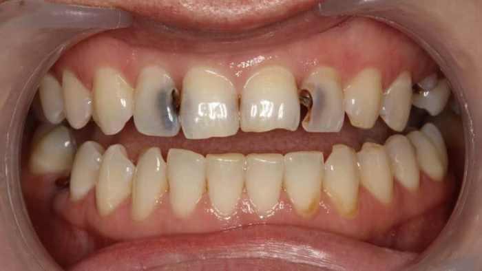 Поражение зубов кариесом