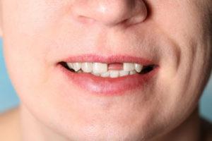 Потеря зуба