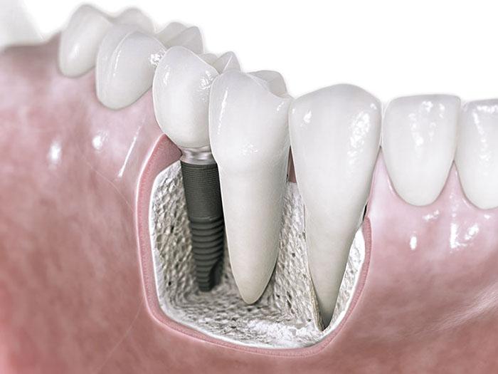 Рисунок импланта зуба