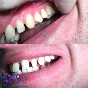 восстановления сломанного зуба