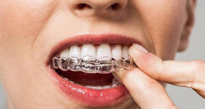 Элайнеры для выравнивания зубов цены, капы фото до и после.