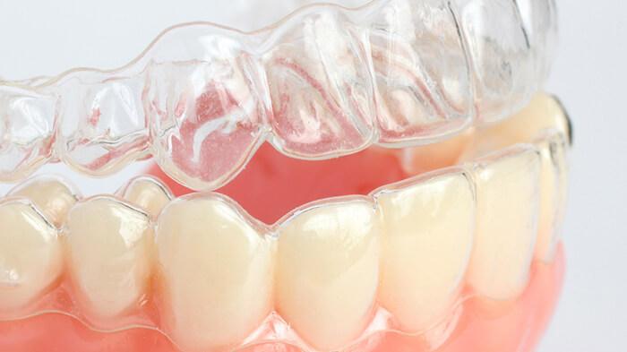 Инвизилайн на зубах