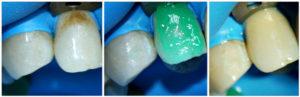 Лечение кариеса реминерализующими препаратами