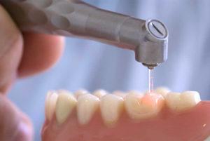 Лечение зуба лазером