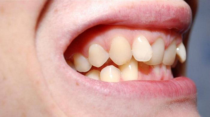 Неправильное положение отдельных зубов