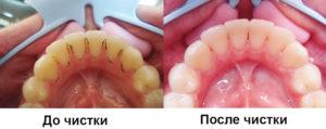 Чистка зубного налета до и после