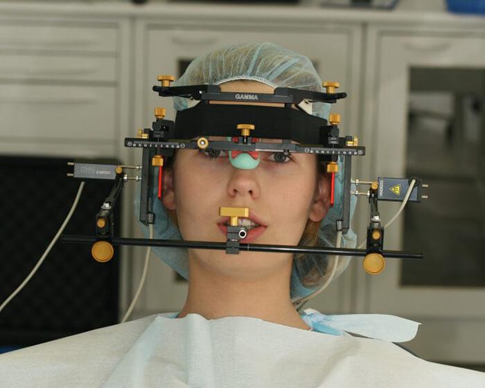 Кондилография в стоматологии