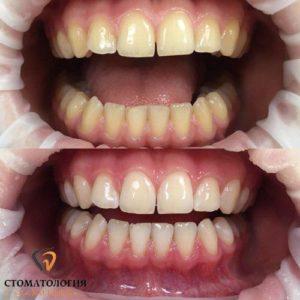 Лазерное отбеливание зубов SmartBleach 3LT