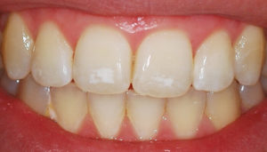 Пигментация эмали зубов