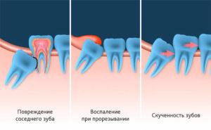 Причины удаления зуба мудрости